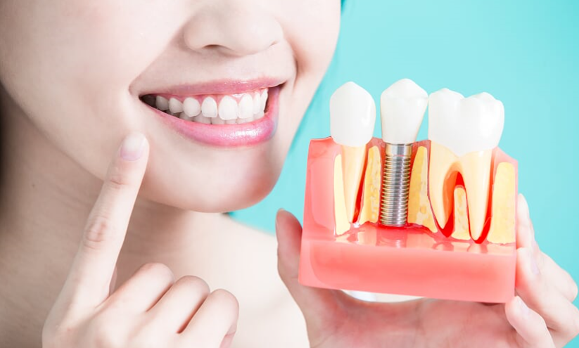 Dental Crown for Implants