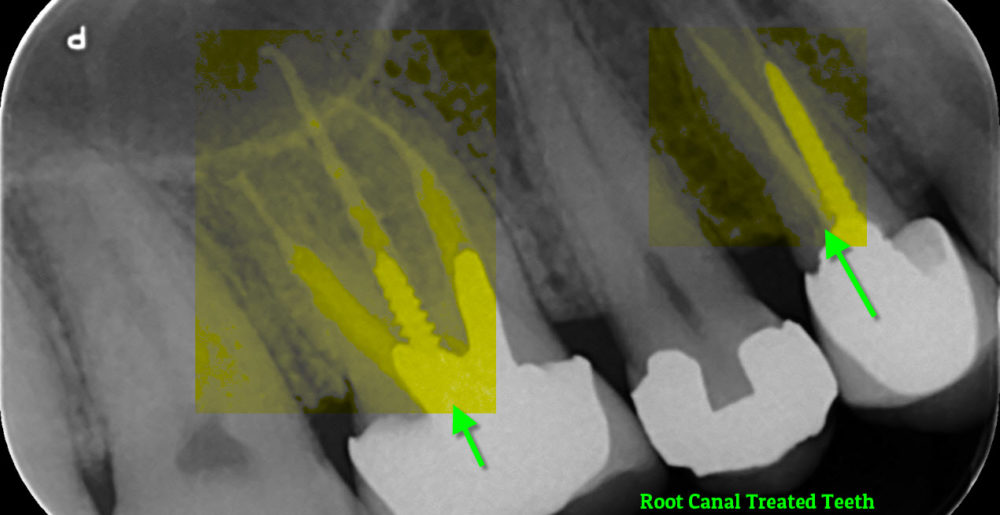 X-ray of RCT teeth