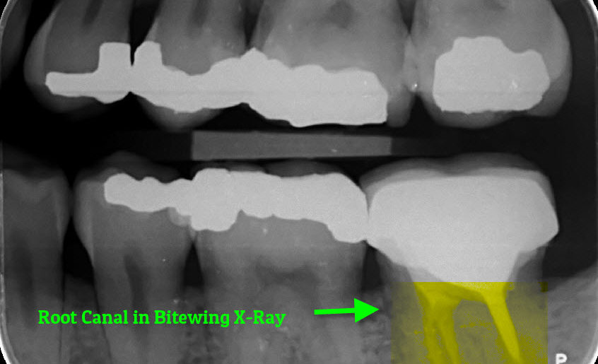 Root Canal Bite wing