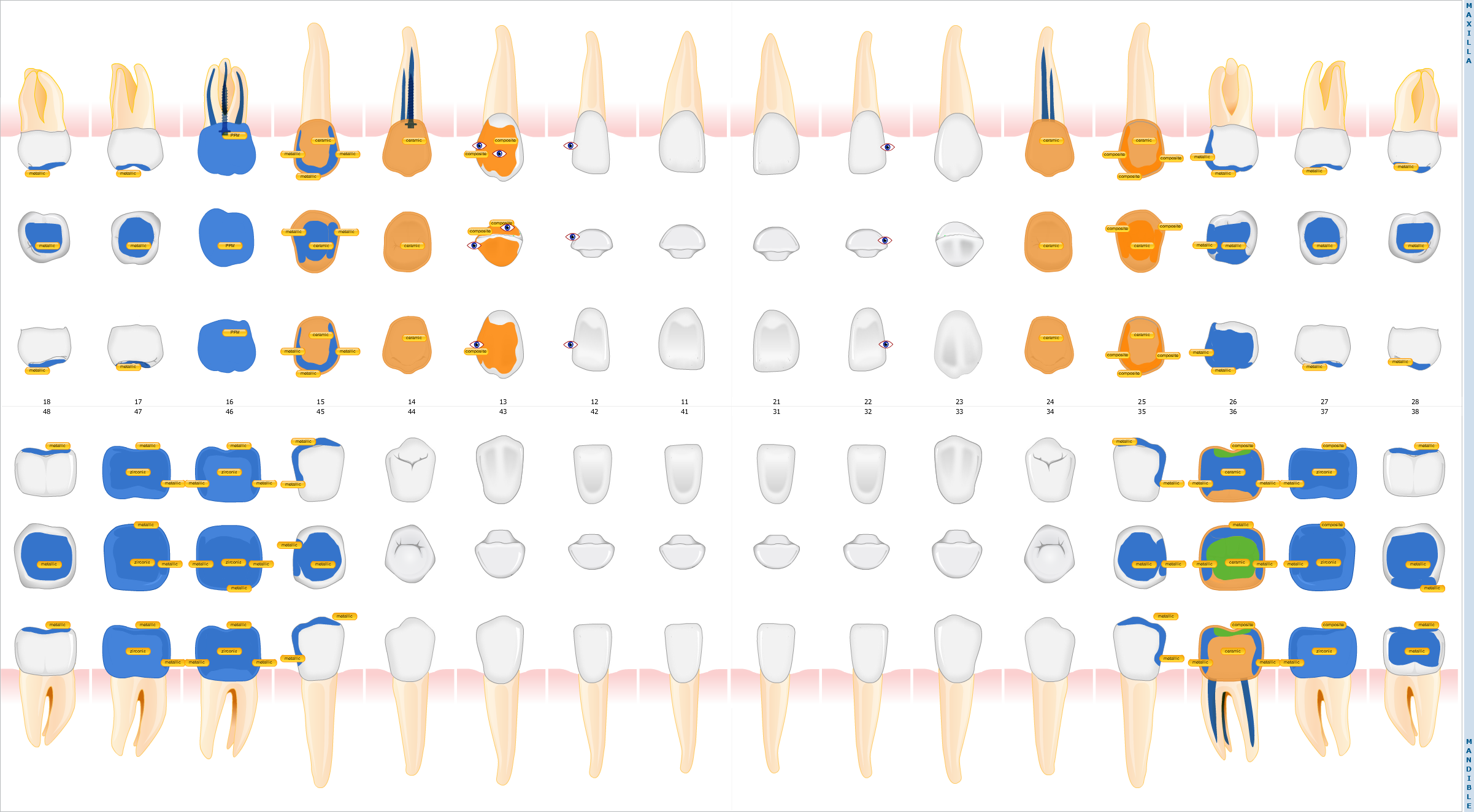Tooth Chart of a patient