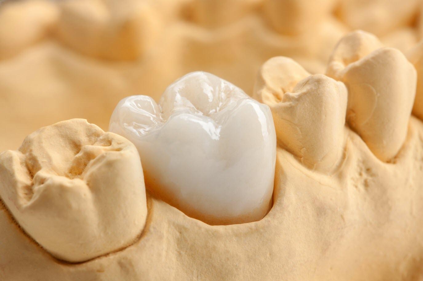 Zirconia Dental Restoration
