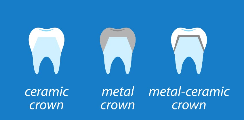Crown materials