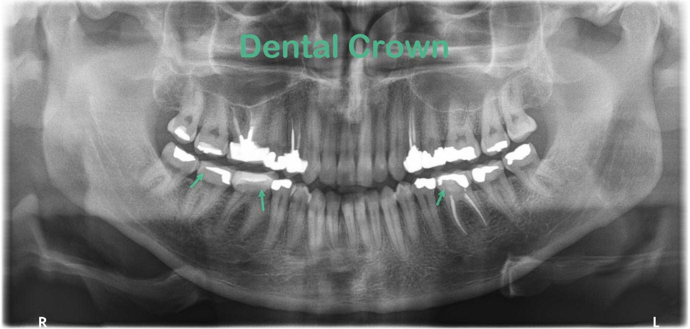 Xray of Dental Crown